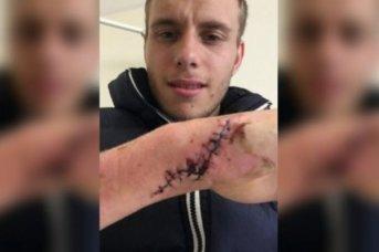 Reino Unido: un joven fue golpeado, quemado y aislado por su novia