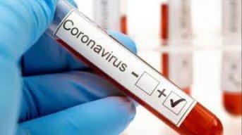 Coronavirus: 158 casos positivos nuevos. Capital 120 interior 38